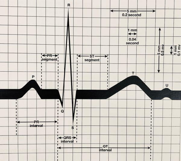 MOR Safety Service Fairfield | EKG Class